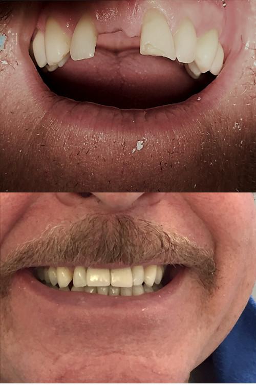 Dental Bridge before after Image