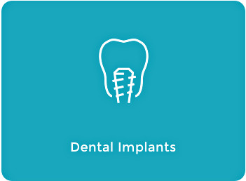 Dental Implants Tile