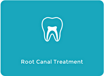 Root Canal Treatment Tile
