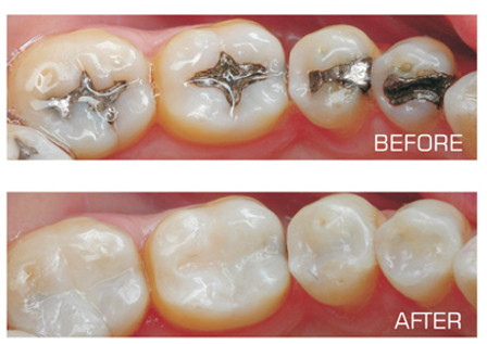 White Fillings Image