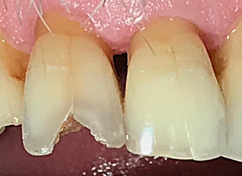 Case Studies - White Fillings Before