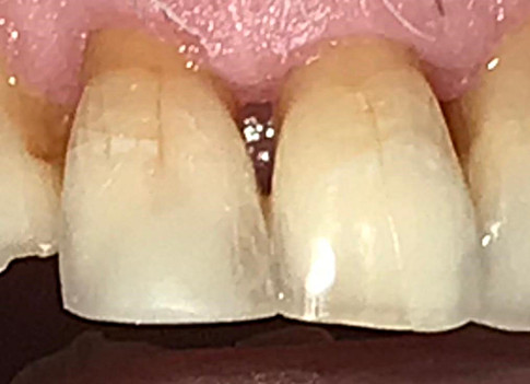 Case Studies - White Fillings After